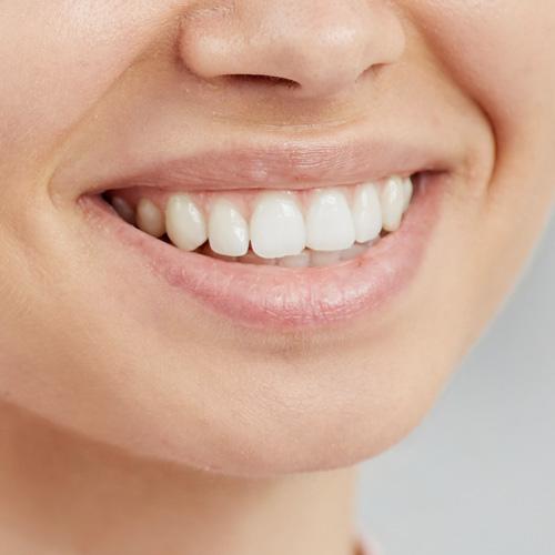 植牙迷思大揭密 輕鬆擁有一口好牙