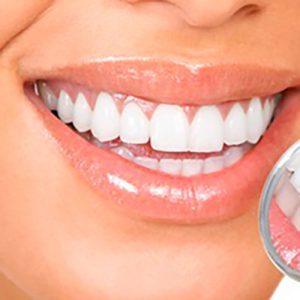 植牙術後保養須知1