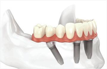 【植牙壽命Q&A】植牙可以用多久?找有植牙保固的優質診所讓你不再煩惱!