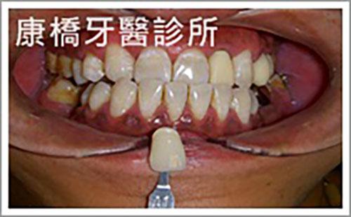 牙科美容│張先生