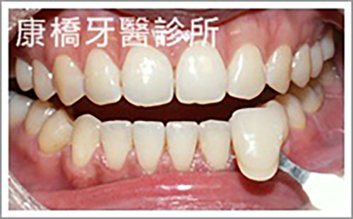 牙科美容│楊小姐