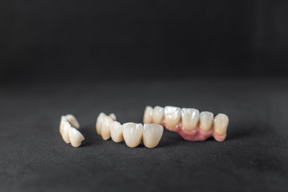 牙冠材質這麼多種怎麼選?原來不只全瓷冠唯一選項