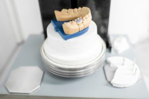 dental-oven-at-the-laboratory-XCANTNJ (1)