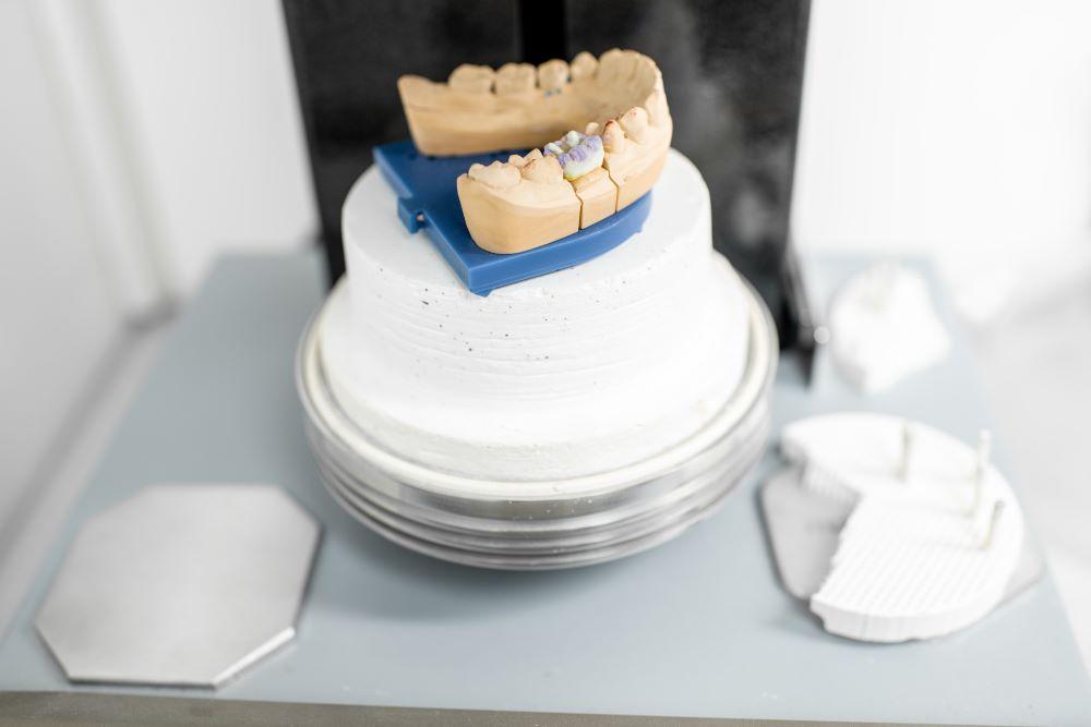 缺牙可以一直空著嗎?天生缺牙該選擇哪一個補牙方法