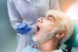 oral-rehabilitation全口重建